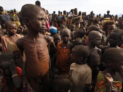 Die häufigste Todesursache ist Unterernährung, aber auch ein Masern-Ausbruch in dem Flüchtlingslager hat bereits unzählige Opfer gefordert.