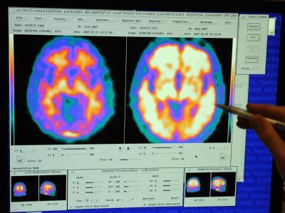 Die Gehirne eines gesunden Menschen (links) und eines Alzheimerpatienten unterscheiden sich deutlich.