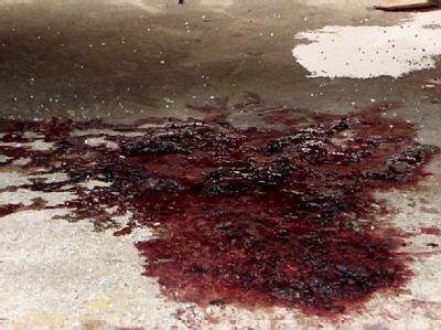 Der Selbstmordanschlag galt einem Krankenhaus in der zentralafghanischen Provinz Logar. (Symbolbild)