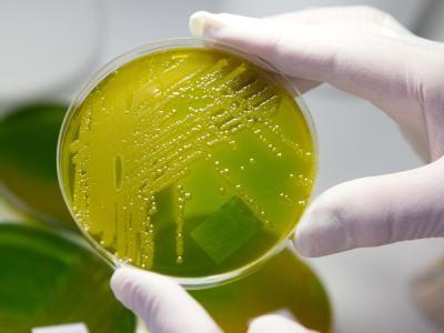 EHEC-Keime im Labor: In Deutschland erkrankten auch vor dem großen Ehec-Ausbruch im vergangenen Mai 800 bis 1200 Menschen pro Jahr an dem aggressiven Lebensmittelkeim. Foto: Matthias Bein