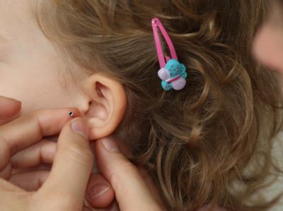 Dürfen Eltern ihren kleinen Kindern Ohrlöcher stechen lassen? Foto: dpa/Symbolbild