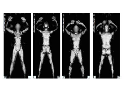 Die Röntgenbilder, die mit Hilfe eines Ganzkörper-Scanners entstanden sind, zeigen eine weibliche und eine männliche Testperson.