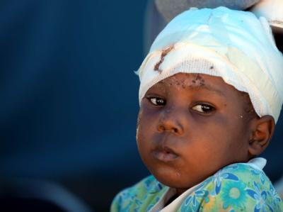 Verletztes Kind im Krankenhaus. Viele obdachlose Kinder sind in Haiti ohne jegliche Betreuung.