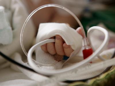 An der Hand eines Babys, das auf der Kinder-Intensivstation der Mainzer Universitätsklinik liegt, sind Schläuche für die medizinische Versorgung angebracht (Archivfoto).
