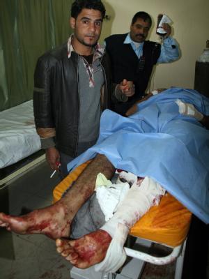 Ein Anschlagsopfer wird im Krankenhaus von Tikrit versorgt.