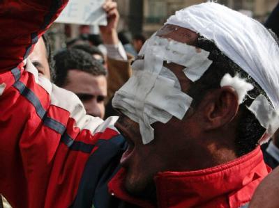 Schwer verprügelt und verletzt, aber ungebrochen: Demonstrant in Kairo.