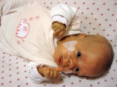 Nur 280 Gramm Geburtsgewicht: Fr�hgeborenes �berlebt