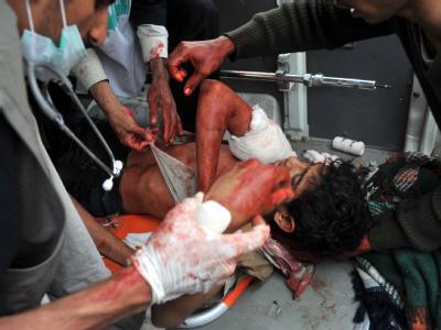 Jemenitische Sicherheitskräfte haben in Sanaa gezielt auf Demonstranten geschossen.