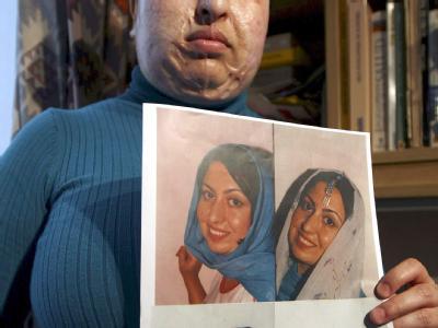 Ameneh Bahrami zeigt Fotos mit ihrem früheren Aussehen.