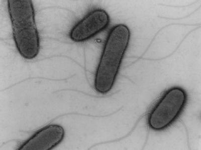 Mittels eines Elektronenmikroskops erstelltes Foto von EHEC-Bakterien.