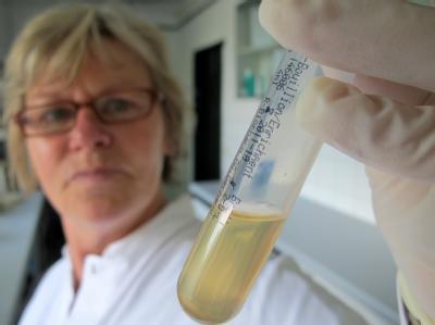 Die EHEC-Fahndung läuft auf Hochtouren: In Laboren untersuchen Experten Lebensmittel und Stuhlproben, um dem gefährlichen Durchfallerreger auf die Schliche zu kommen.