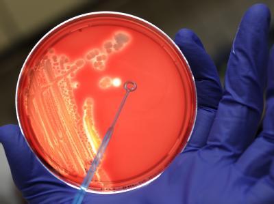 Bakterienstamme auch einem Nährboden im Institut für Hygiene der Universität Münster.