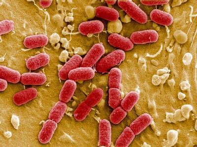 EHEC-Bakterien unter einem Mikroskop.