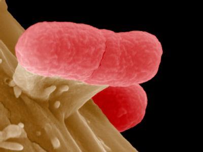 Lebensgefährlicher Winzling: EHEC-Bakterien unter einem Elektronen-Mikroskop.
