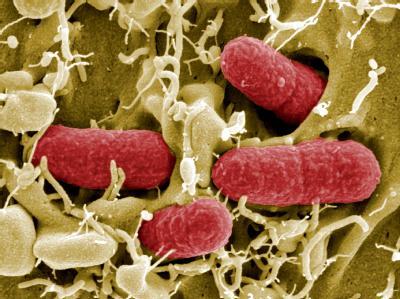 Elektronenmikroskopische Aufnahme von EHEC-Bakterien (Foto: Manfred Rohde/Helmholtz-Zentrum für Infektionsforschung). Der Darmkeim stellt die Forscher weiterhin vor Rätsel.