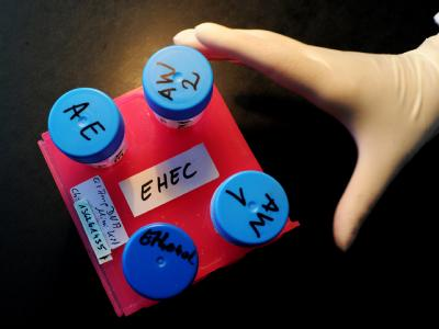 Die Zahl der EHEC-Neuinfektionen geht zurück - aber immer noch sterben Menschen an den Folgen des Darmkeims. Bis Donnerstag waren es in Europa schon 39. Die Experten warnen weiter vor rohen Sprossen.