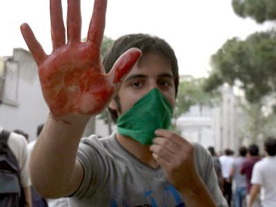 In Teheran hebt ein Demonstrant seine blutige Hand. Iran erlebt die schwersten Unruhen seit 30 Jahren.