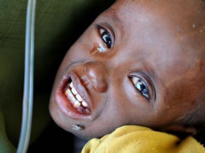 Die Hungersnot in Somalia wird sich nach Einschätzung von Experten weiter verschlimmern.