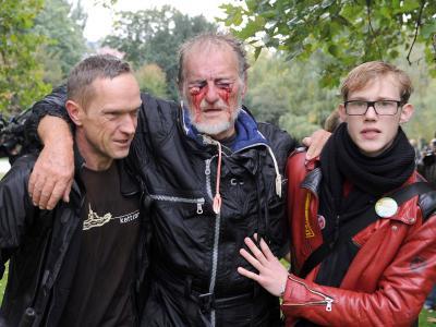 Dieses Foto eines verletzten Stuttgart-21-Gegners schockierte die Öffentlichkeit. Foto: Marijan Murat/Archiv